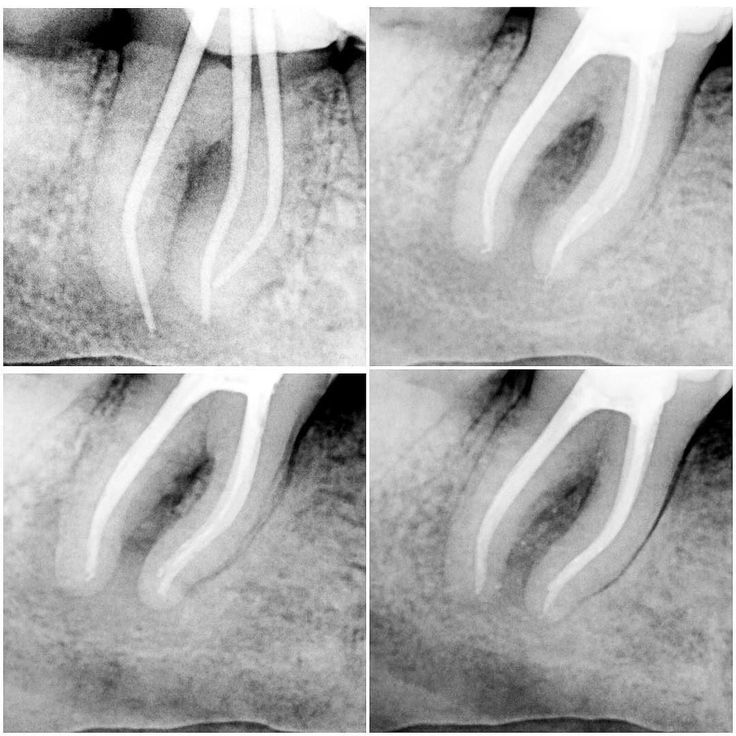 The 367 best Root Canals images on Pinterest   Dentistry, Root canal ...