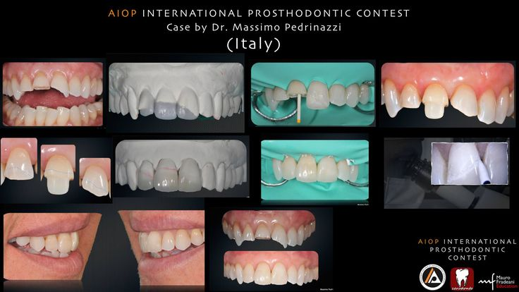 Case report by Massimo Pedrinazzi, Italy. A 39-year-old woman presented at the private clinic to restore a crown fracture to her upper right lateral and both central incisors. The patient was a non-smoker and in a good health, with no contraindication to surgical therapy. The clinical examination revealed no probing depths deeper than 3mm.  more on: https://www.facebook.com/media/set/?set=a.10152812789473970.1073741922.134992723969&type=1