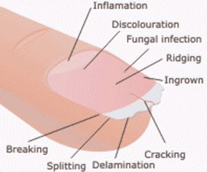 Think You're Healthy? Check Your Fingernails | Before It's News