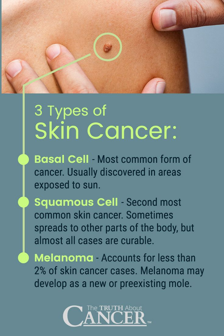 pictures of skin cancer - 736×1104