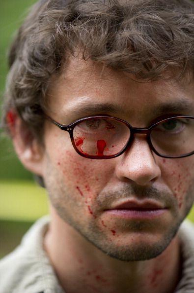 血が...『ハンニバル』でのヒュー・ダンシー