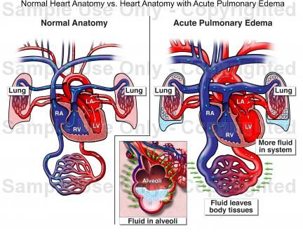 1000+ images about chapter 19: the circulatory system: the ...