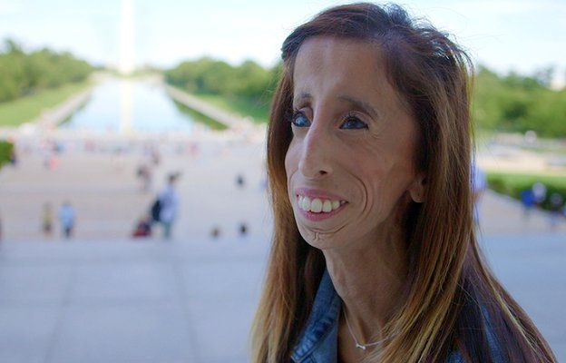 A woman who was bullied for the way she looks is the focus of a new film that premieres at the South by Southwest festival in Austin, Texas on Saturday.  What started as a search for music online – purely homework procrastination – would change Lizzie Velasquez's life.
