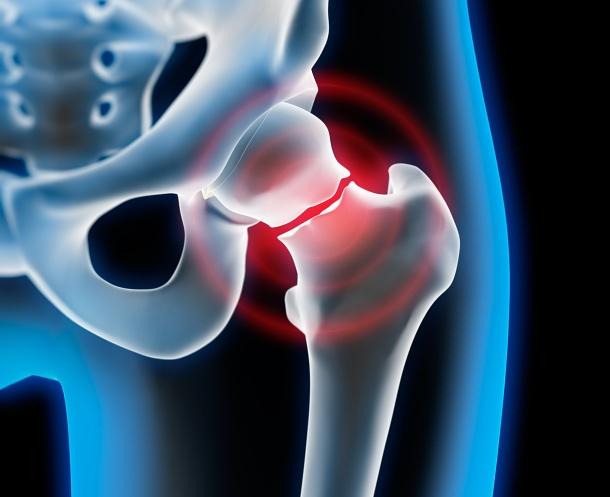 Uderzenia gorąca a osteoporoza