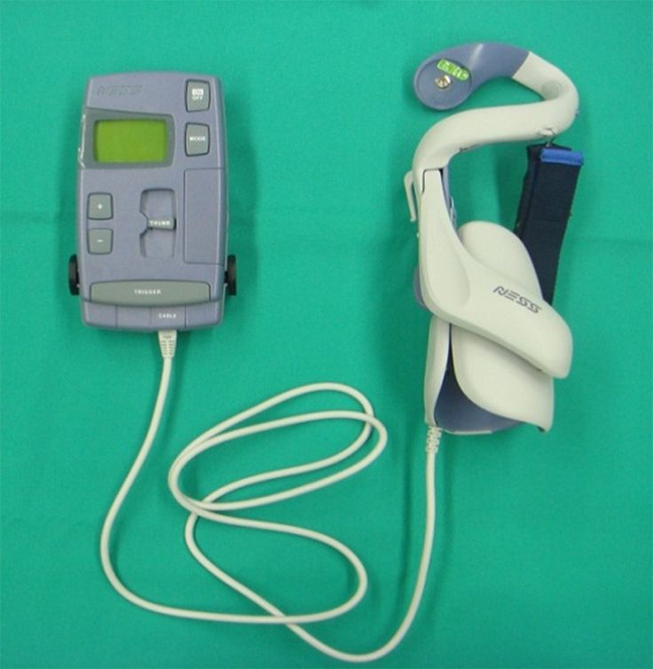 ABSTRACT Introduction: Functional Electrical Stimulation (FES) is a technique used in the restoration and generation of movements performed by subjects with neuromuscular disorders such as spinal c…