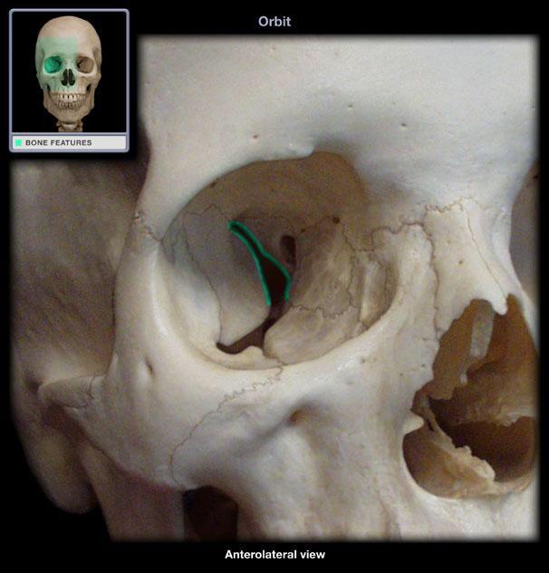 best 20+ sphenoid bone ideas on pinterest | anatomy bones, facial, Human Body