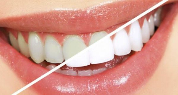 For White and Healthy Teeth Use This Mixture Every Day