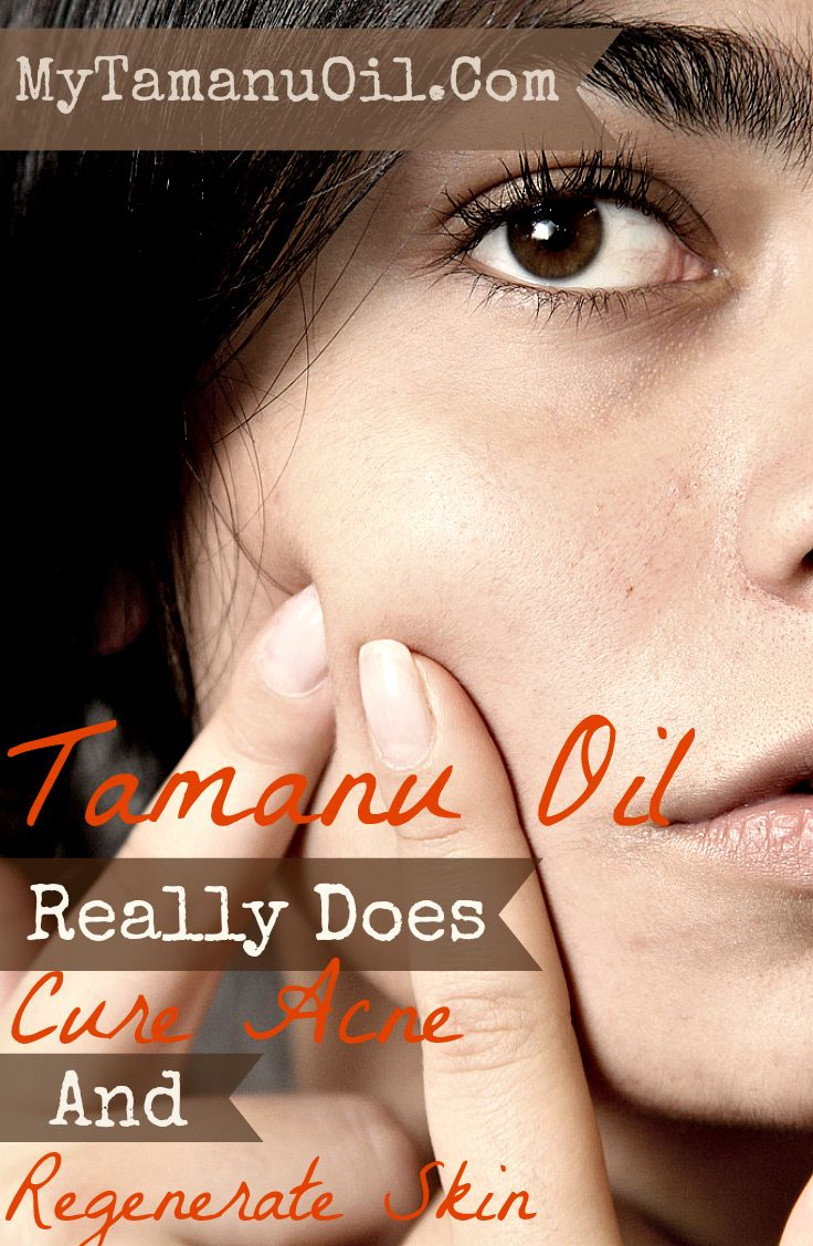 Tamanu Oil has been used for hundreds of years for many skin ailments - no products for sale-- just info!