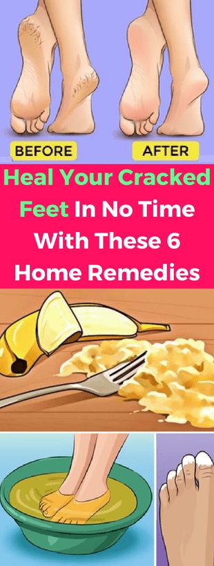 Heal Your Cracked Feet In No Time With These 6 Home Remedies -