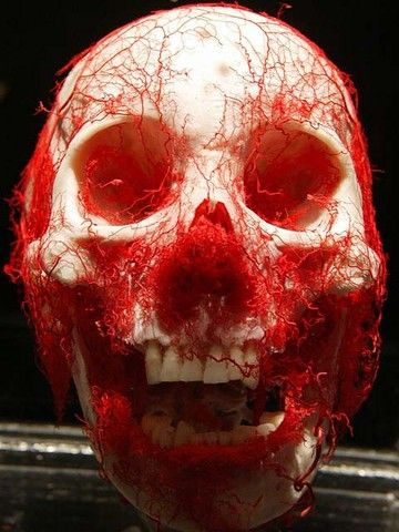 Plasticized blood vessels of the head (OP)