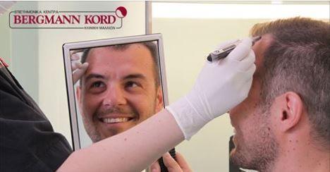 Εξατομικευμένο Πλάνο Μεταμόσχευσης Μαλλιών ! Η Μεταμόσχευση Μαλλιών στη Bergmann Kord, είναι απολύτως εξατομικευμένη και προσαρμοσμένη στο προσωπικό προφίλ κάθε ενδιαφερόμενου, για να πλησιάζει, όσο το δυνατόν περισσότερο, στην τελική επιθυμητή εικόνα!