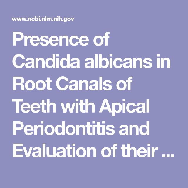Presence of Candida albicans in Root Canals of Teeth with Apical Periodontitis and Evaluation of their Possible Role in Failure of Endodontic Treat...  - PubMed - NCBI