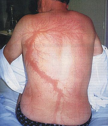 Lichtenberg figures [fractal formations] on a man's back due to a lightning strike.