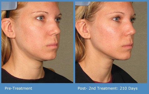 Ultrasound Skin Treatment Patient Results Before And