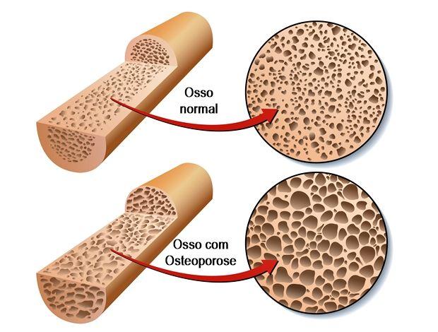 Osteoporose é um dos problemas que aumenta o risco de fraturas, o que afeta e muito a qualidade de vida. Veja aqui as causas, sintomas e tratamentos!