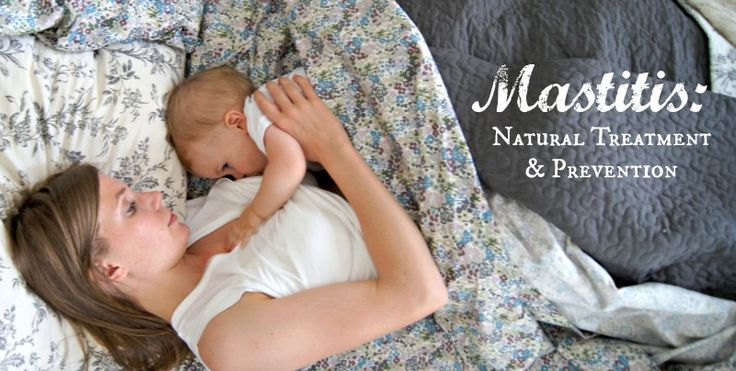 How to Prevent and Treat Mastitis Naturally - For every mama who has known the misery of fiery, lumpy, engorged breasts!