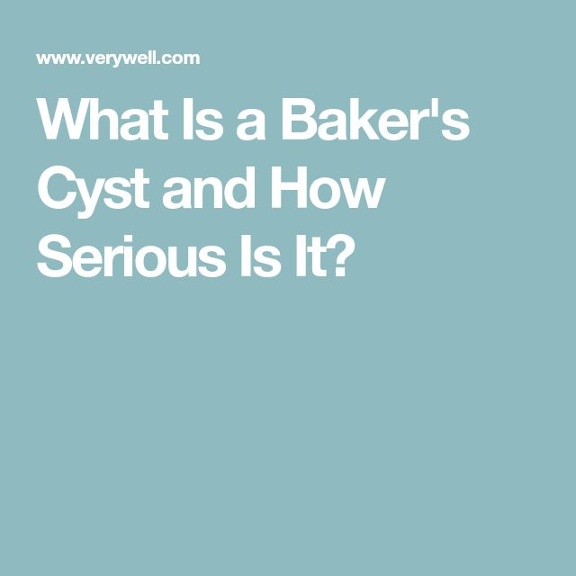 What Is a Baker's Cyst and How Serious Is It?