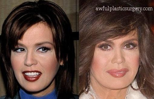Marie Osmond, why did you do this??? It looks terrible....