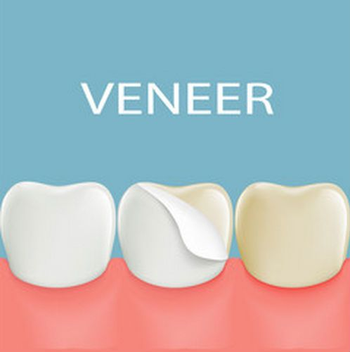 Crowns, Bridges and Veneers - Kitsap Gentle Dentistry of Washington