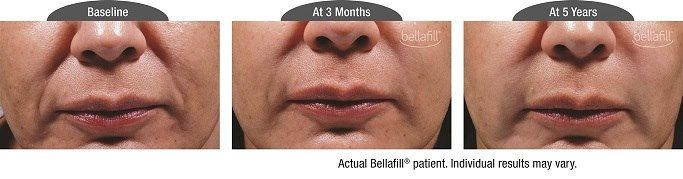 Introducing Bellafill Dermal Filler: The Newest Cosmetic Filler Option