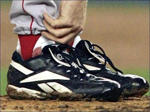 Curt Schilling's bloody sock, 2004 ALCS.  I saw this sock in a baseball exhibit at Boston Museum of Science.
