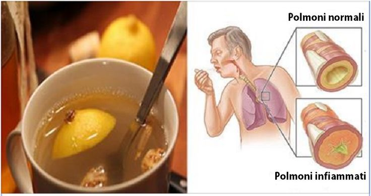 L'elisir di 3 ingredienti che elimina il muco dai polmoni e rafforza il sistema immunitario   Piccole Storie
