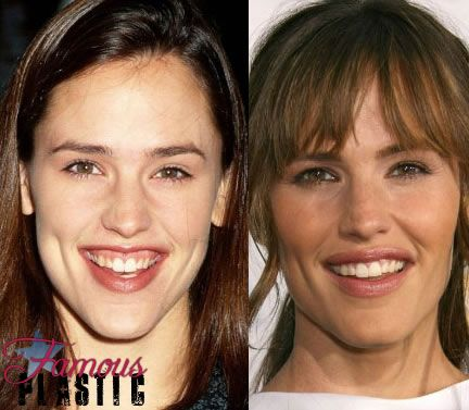 jennifergarner Botox reduces a gummy smile | Enhanced Works ...