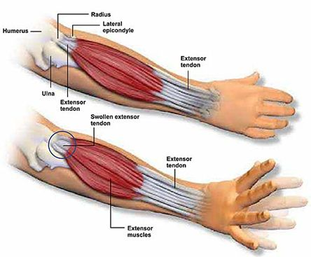 how to build muscle around elbow