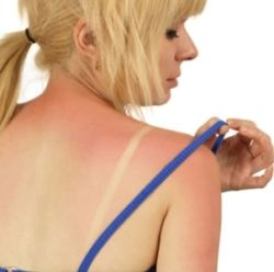 Home Remedies For Sunburn - Natural Treatments, Cure For Sunburn | Search Home Remedy
