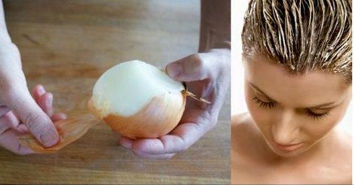 To čo sa stane, keď si rozvaríte šupku z cibule a umyjete si s nimi vlasy je úžasné | Chillin.sk
