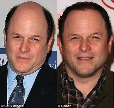Jason Alexander Talks About Hair Loss and Toupee