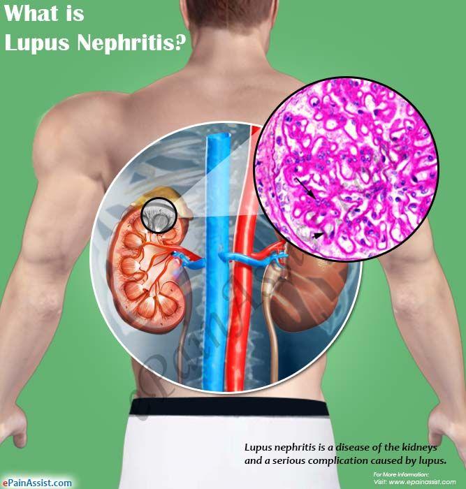 What is Lupus Nephritis?
