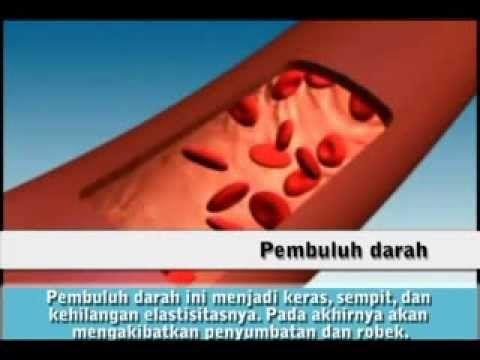 ANIMASI   Hipertensi