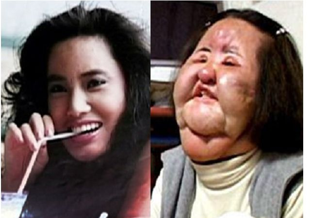 A former Korean model addicted to plastic surgery injected cooking oil into her face when doctors refused to perform any more cosmetic operations on her.  Hang Mioku, now about 50 years old, has been left with a badly disfigured face following her desperate attempt to attain softer and smoother skin.