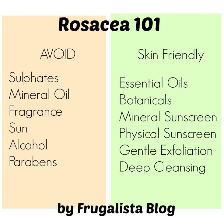 My skin care 101- surviving Rosacea. Tips you need to know if you have sensitive or Rosacea prone skin.