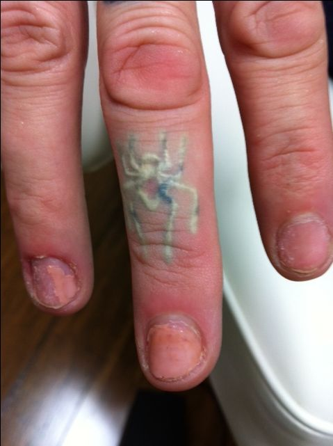 Incy Wincy spider got layered off this finger!  This little guy will hopefully only take two or three sessions to see him totally gone - progress photos will be pinned soon. ph 9417 7748 #tattoos,  #tattooremovalmelbourne, #tattooremoval, #lasertattooremoval, #beauty, #fashion, #picosure, #tattooregret, #tattoo, #picosurelaser