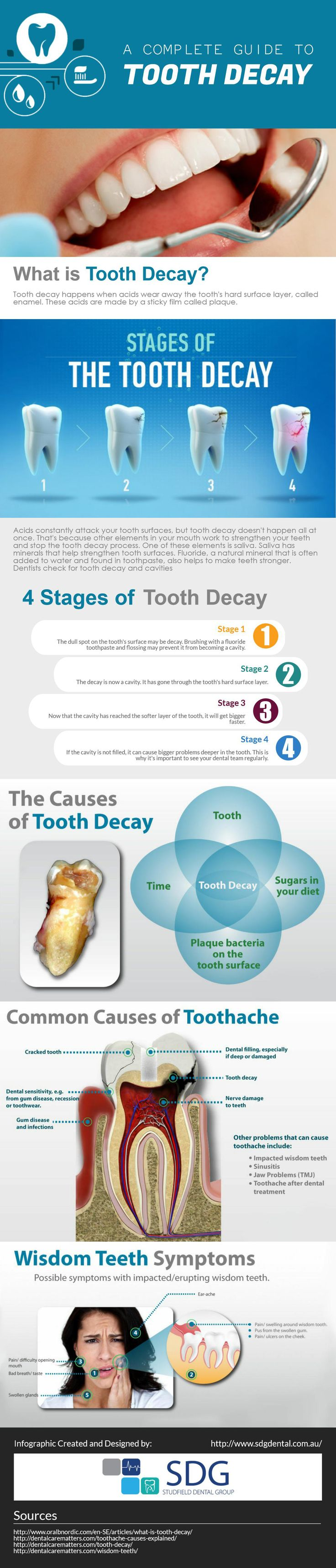Tooth Decay is the most common problem in today's life. There in a busy life, no one has such time to care his teeth properly. The following dental infographic cover a complete guide to tooth decay including what is tooth decay? 4 stages of tooth decay, the common causes of tooth decay, some essential oral health tips and advice on how to prevent tooth decay.