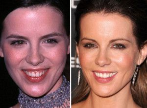 Top 10 Celebrity Cosmetic Dental Surgery Before and After Photos of Kate Beckinsale