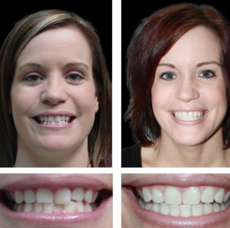 Invisalign Before and After - Straightening - Smile ...