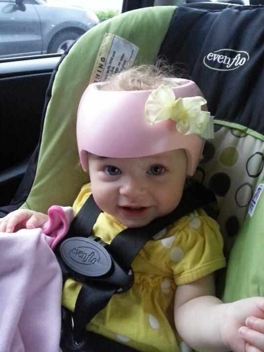 Best Plagiocephaly Images On Pinterest Helmets Baby Helmet - Baby helmet decals