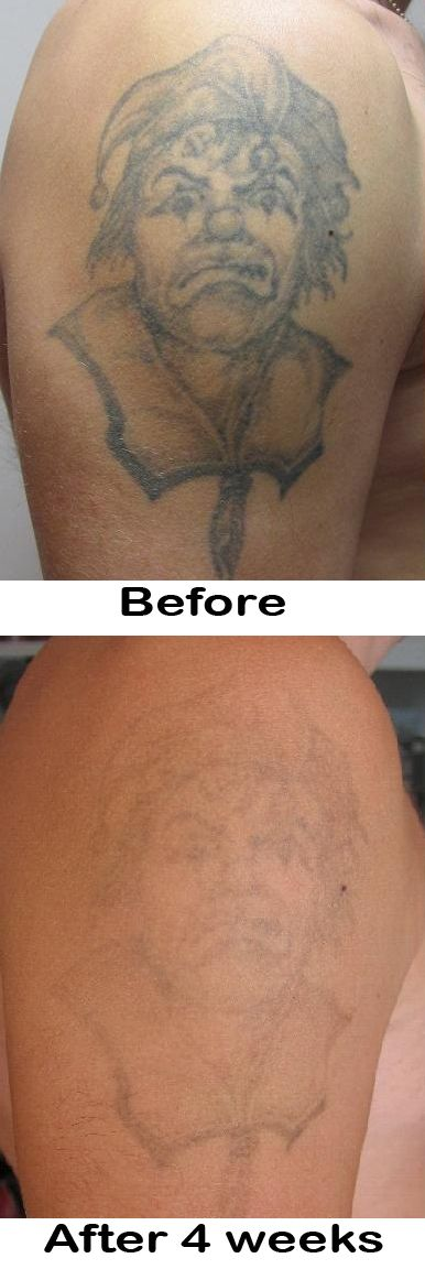 Best 25 natural tattoo removal ideas on pinterest gecko for Home tattoo removal cream