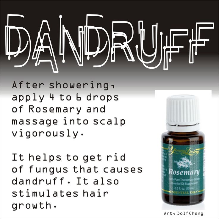 dandruff and essential oils