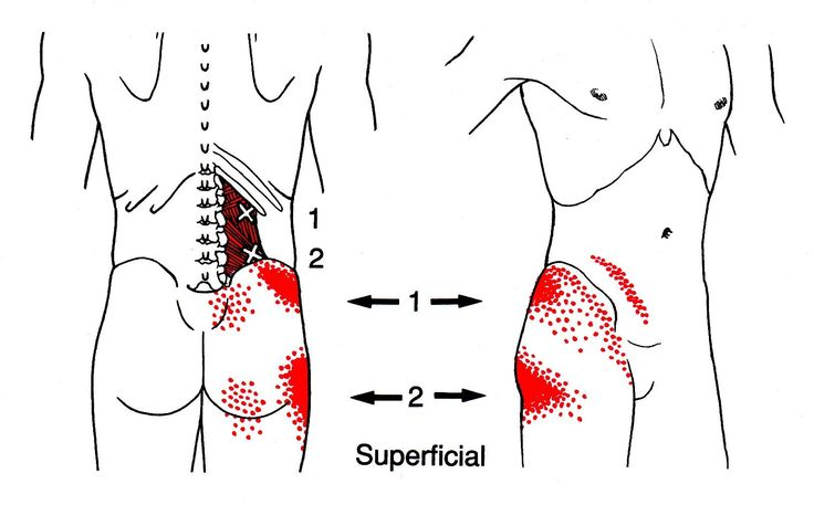 Quadratischer Lendenmuskel | The Trigger Point & Referred Pain Guide