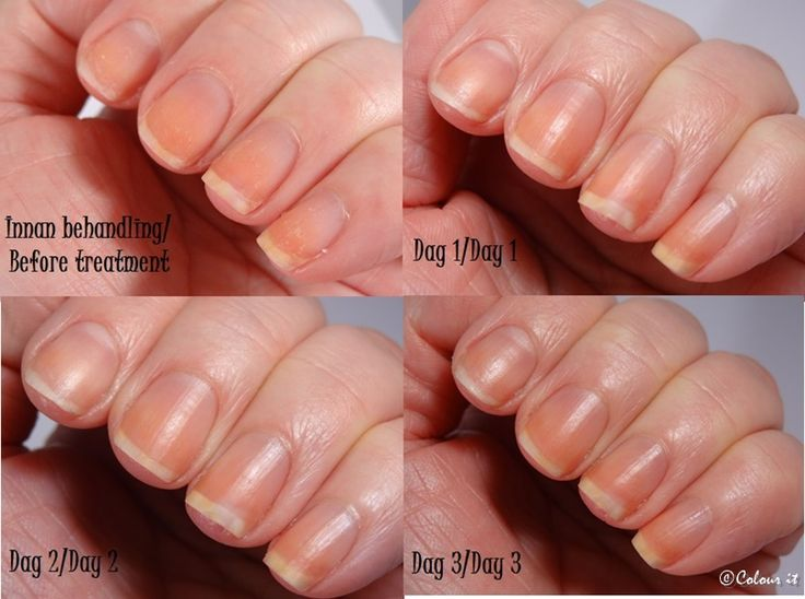 81 best * Simply Pure Nail Oil - Nail Care images on Pinterest ...