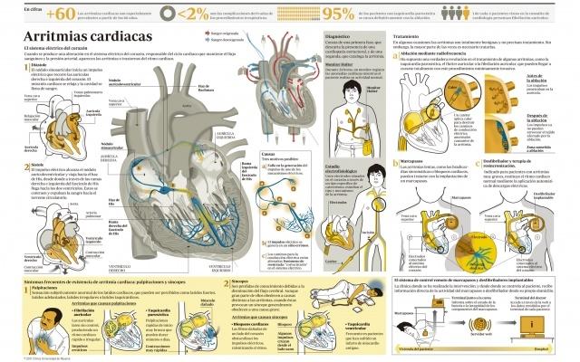 ¿Cuáles son los síntomas de las #arritmias cardiacas?