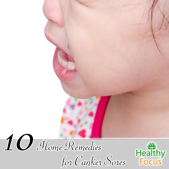 Best 20+ Canker sore home remedies ideas on Pinterest ...