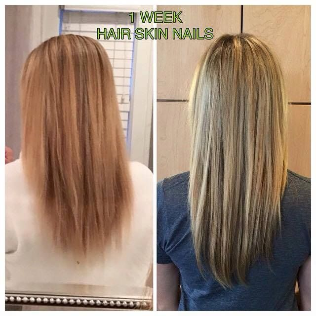 32 best how to make your hair grow faster images on pinterest this vitamin makes my hair grow really fast its not just for thinning hair my hair seemed to get long overnight people are really commenting on how fast urmus Gallery