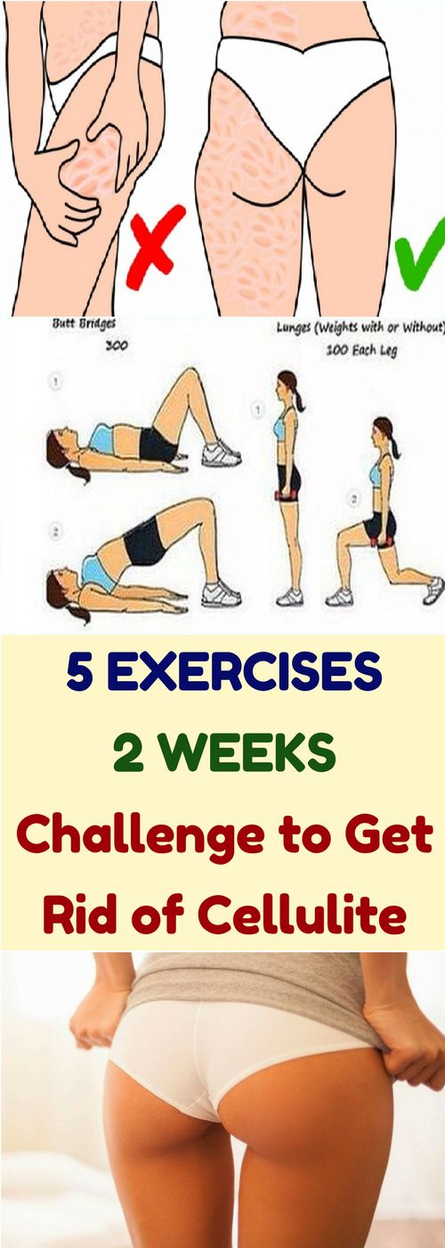 5 Exercise, 2 Weeks Challenge to Get Rid of Cellulite