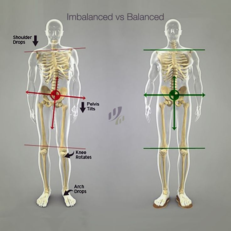 #Misalignment can cause problems all the way down your leg and results in IT Band Syndrome or runner's knee by rotating the leg. #chiropractic #posture