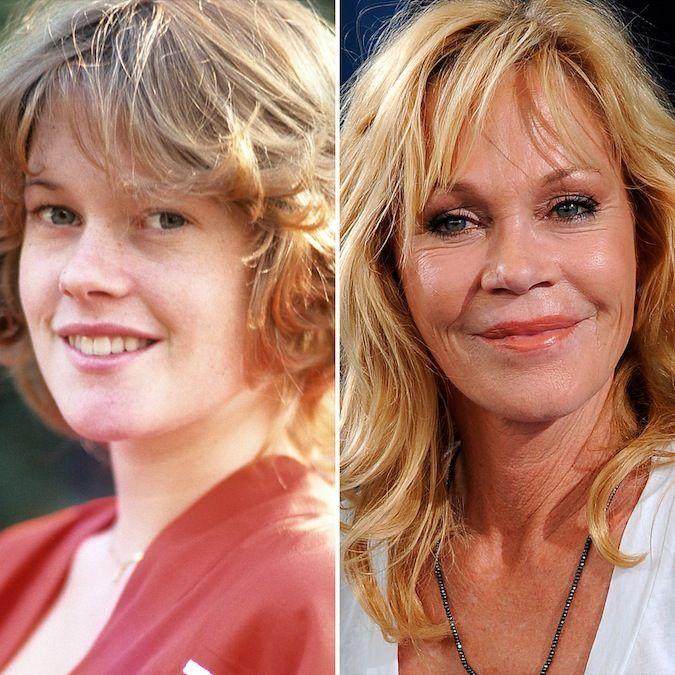 Janice griffith plastic surgery
